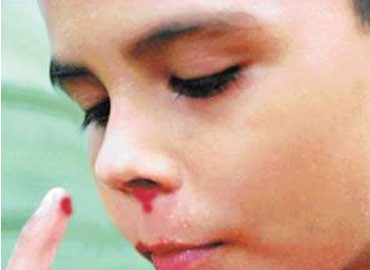 Calculan que hay 300 personas con hemofilia en Yucatán