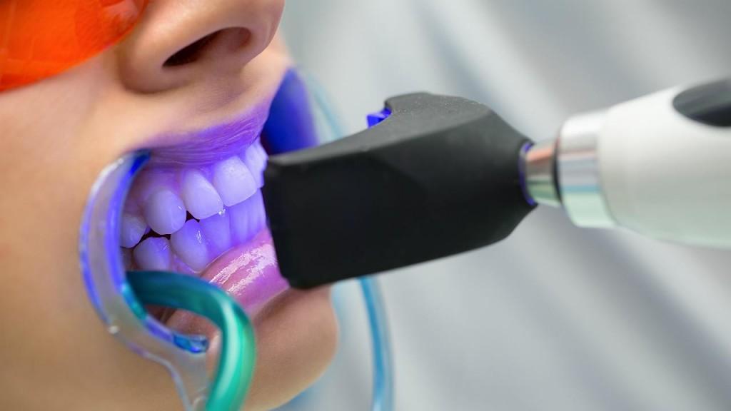 Aumenta la demanda del blanqueamiento dental