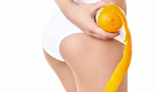 Como prevenir la celulitis o mejor conocida como piel de naranja